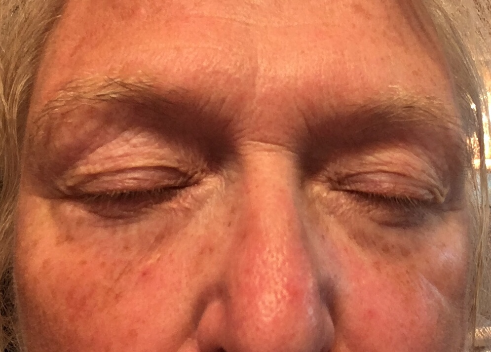 Lavelier Product Review – Real or Scam non surgical facelift